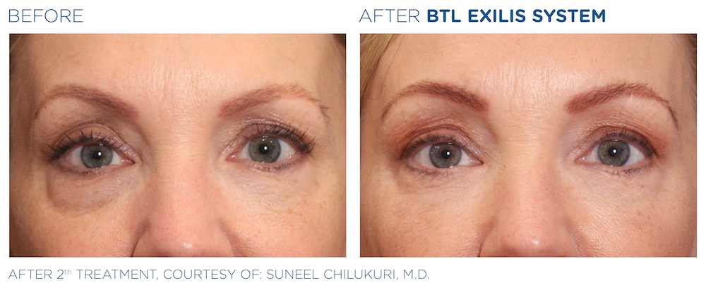 BTL_Exilis_system_PIC_Ba-card-female-eyes-015_EN100