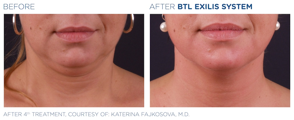 BTL_Exilis_system_PIC_Ba-card-female-face-025_EN100