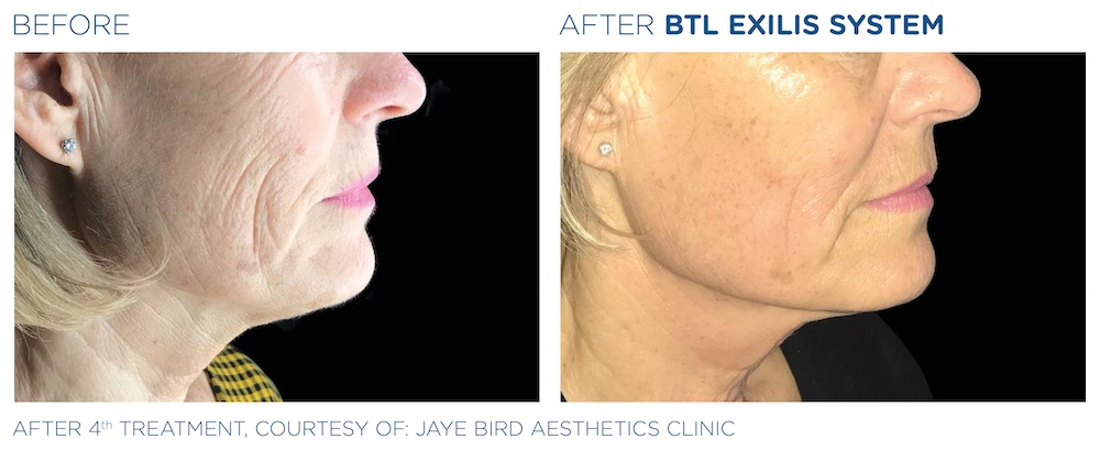 BTL_Exilis_system_PIC_Ba-card-female-face-neck-012_EN100
